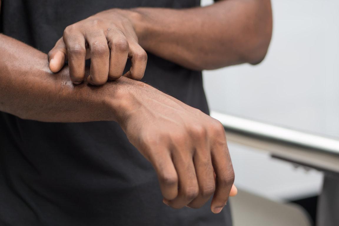 Can Itchy Skin Be A Sign Of Leukaemia Leukaemia Care